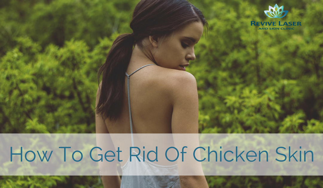 Keratosis Pilaris (aka Chicken Skin) – How to get rid of it