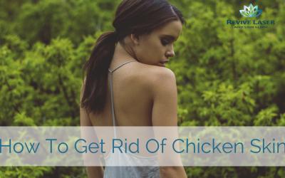 Keratosis Pilaris (aka Chicken Skin) – How to get rid of it