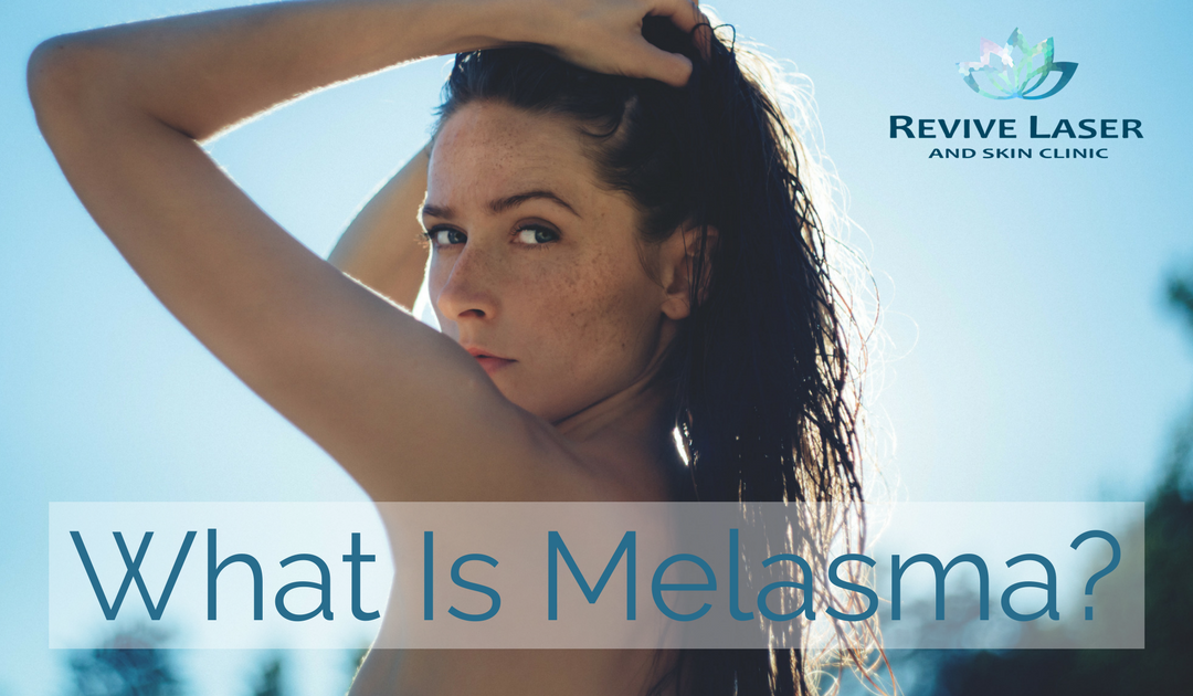 What is Melasma?