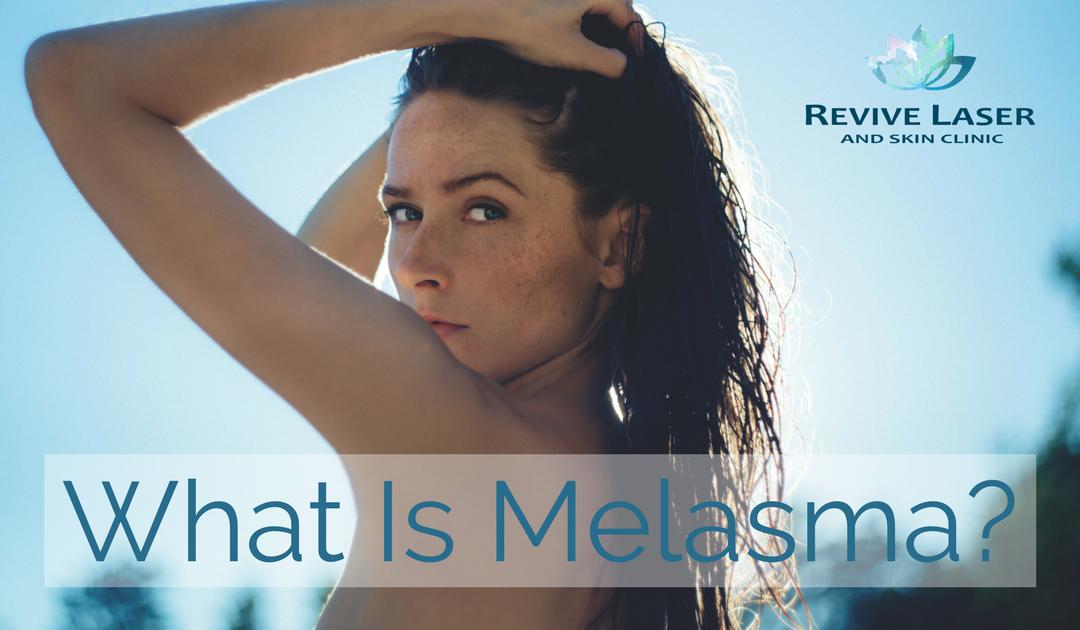 What is Melasma?