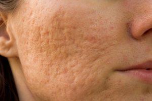 acne scars, acne scar treatment,