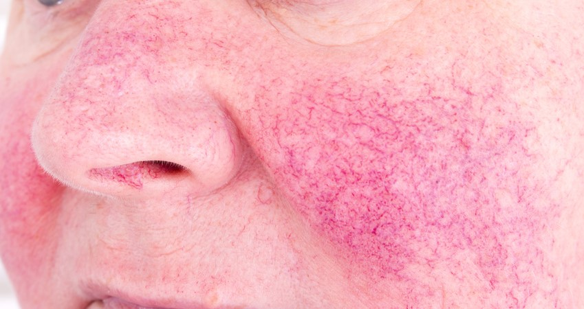 Rosacea Treatment, Rosacea Treatments, Rosacea Laser Treatment,