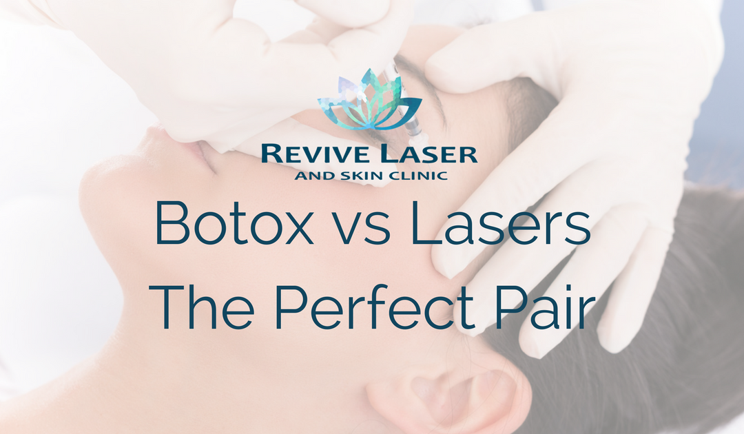 Botox vs Lasers – the perfect pair!