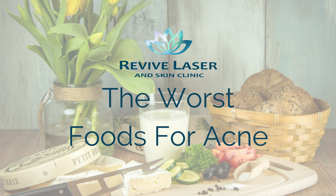 The Worst Foods For Acne