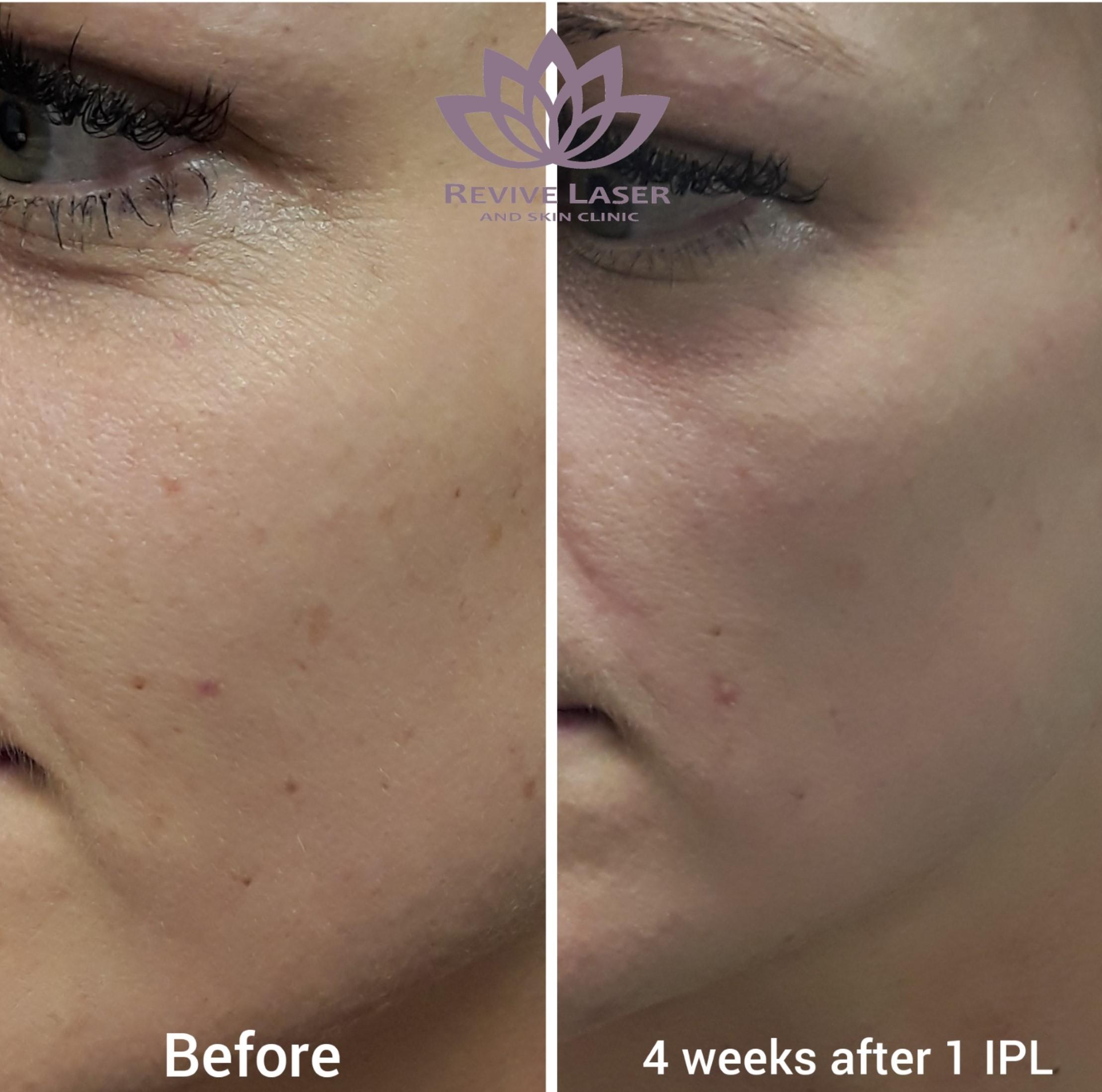 laser eye tightening results | Revive Laser
